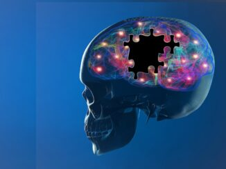 Alzheimer's Disease & the Endocannabinoid System